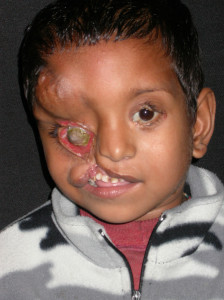 3i_onlus_interethnos_interplast_italy_missione_volontariato_bangladesh_2002-12