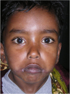 3i_onlus_interethnos_interplast_italy_missione_volontariato_bangladesh_2011-13