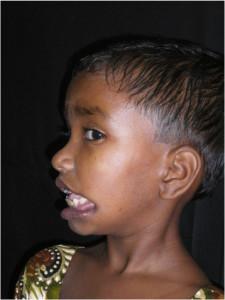 3i_onlus_interethnos_interplast_italy_missione_volontariato_bangladesh_2011-14