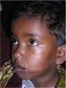 3i_onlus_interethnos_interplast_italy_missione_volontariato_bangladesh_2011-15