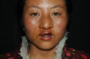 3i_onlus_interethnos_interplast_italy_missione_volontariato_tibet_2006-11