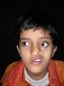 3i_onlus_interethnos_interplast_italy_missione_volontariato_bangladesh_2008-10