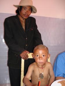 3i_onlus_interethnos_interplast_italy_missione_volontariato_tibet_2006-12