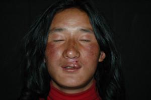3i_onlus_interethnos_interplast_italy_missione_volontariato_tibet_2006-17